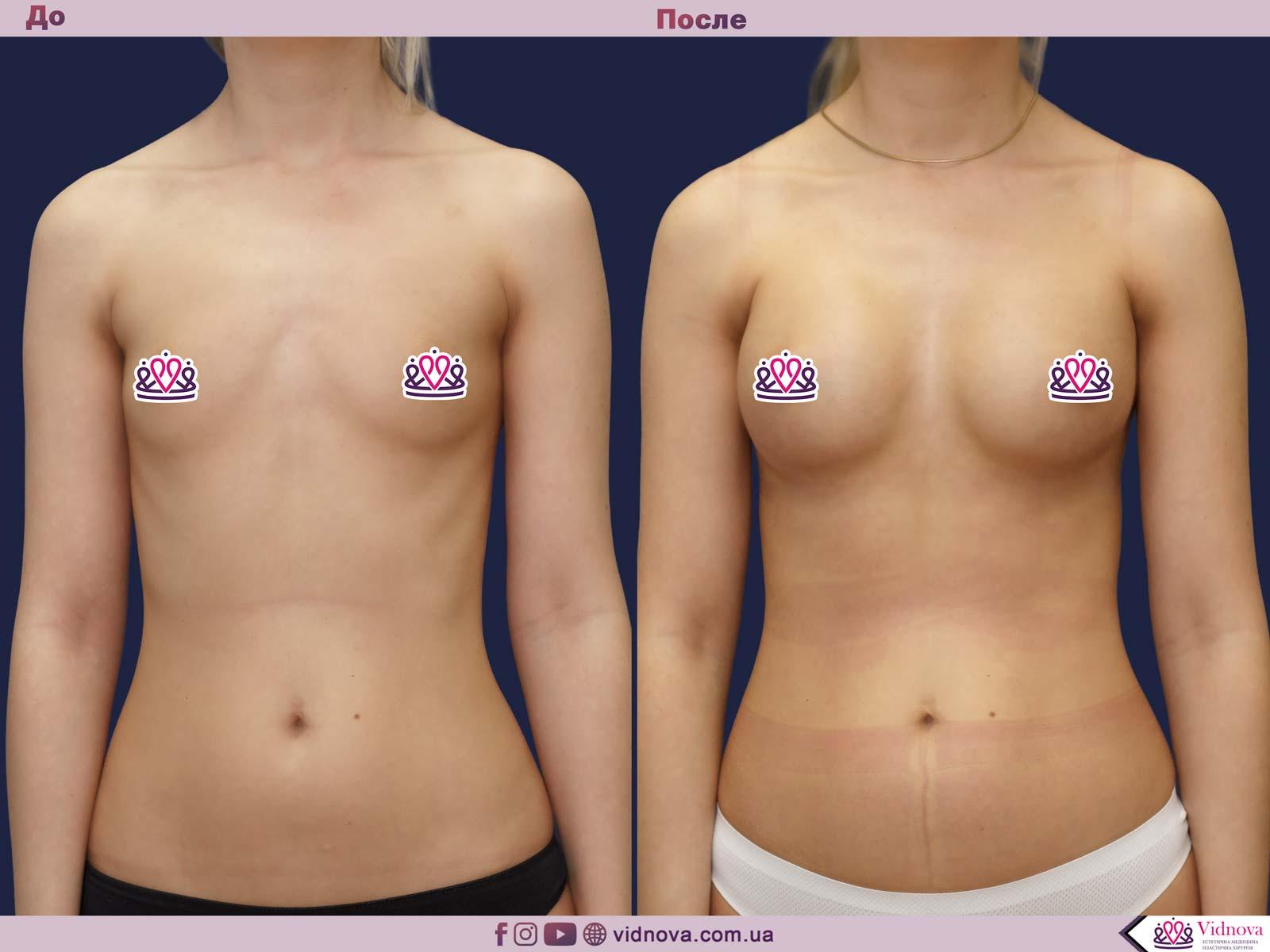 Пластика груди: результаты до и после - Пример №39-0 - Светлана Работенко