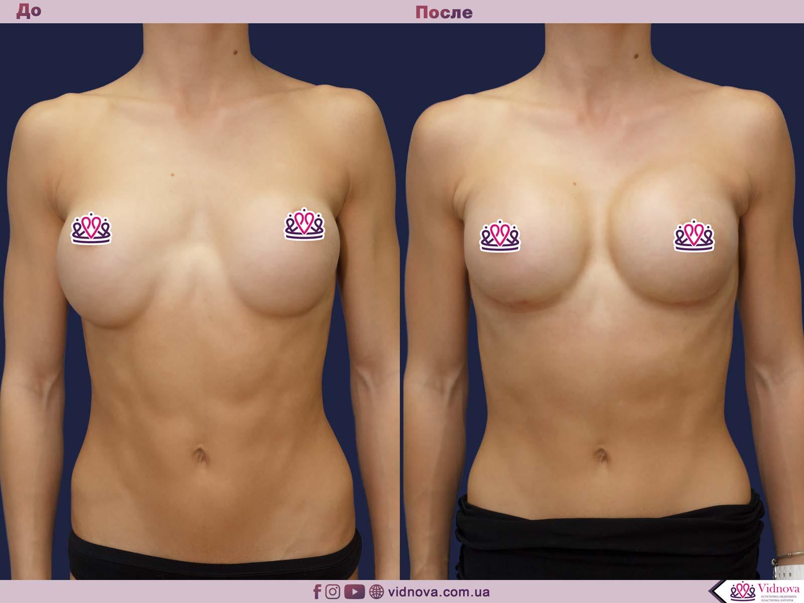 Пластика груди: результаты до и после - Пример №38-0 - Светлана Работенко