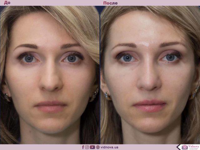 Пластика носа - ринопластика 1 48 640x480