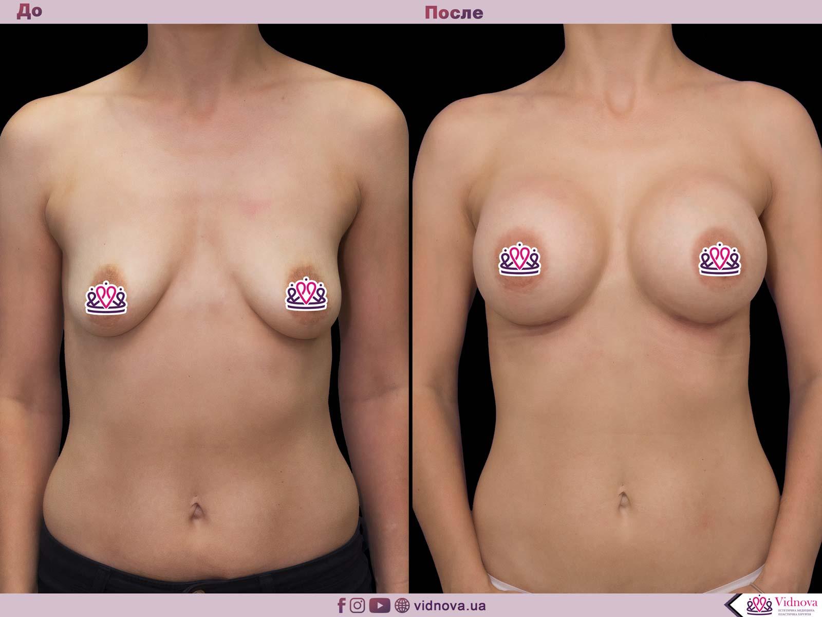 Пластика груди: результаты до и после - Пример №48-0 - Светлана Работенко