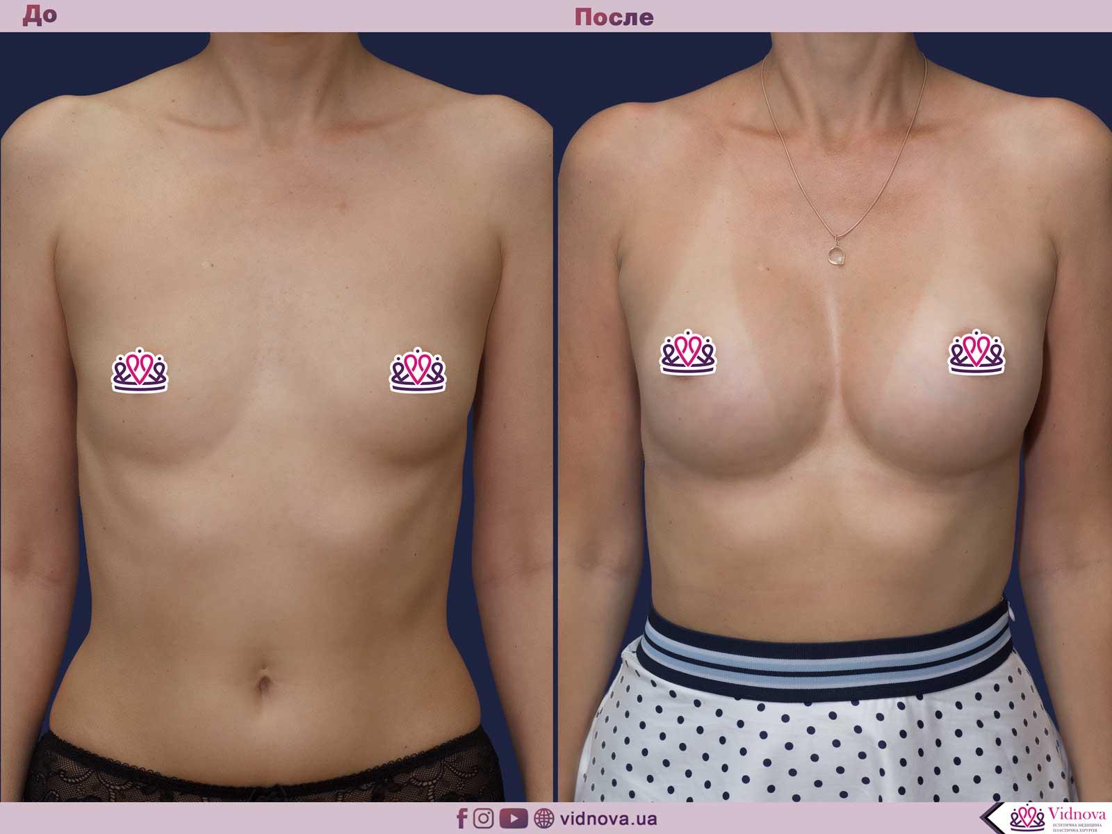 Пластика груди: результаты до и после - Пример №43-0 - Светлана Работенко