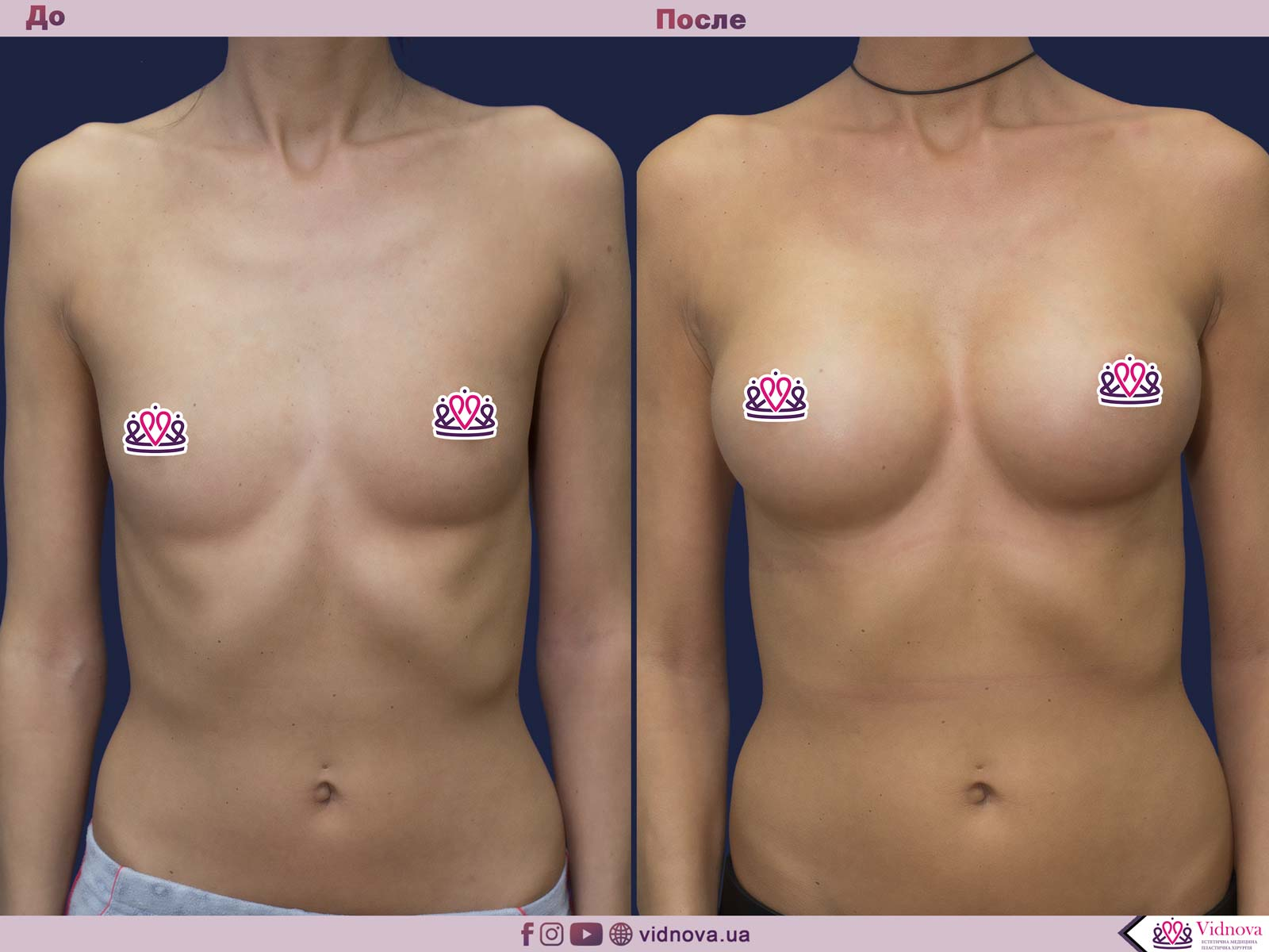 Пластика груди: результаты до и после - Пример №42-0 - Светлана Работенко