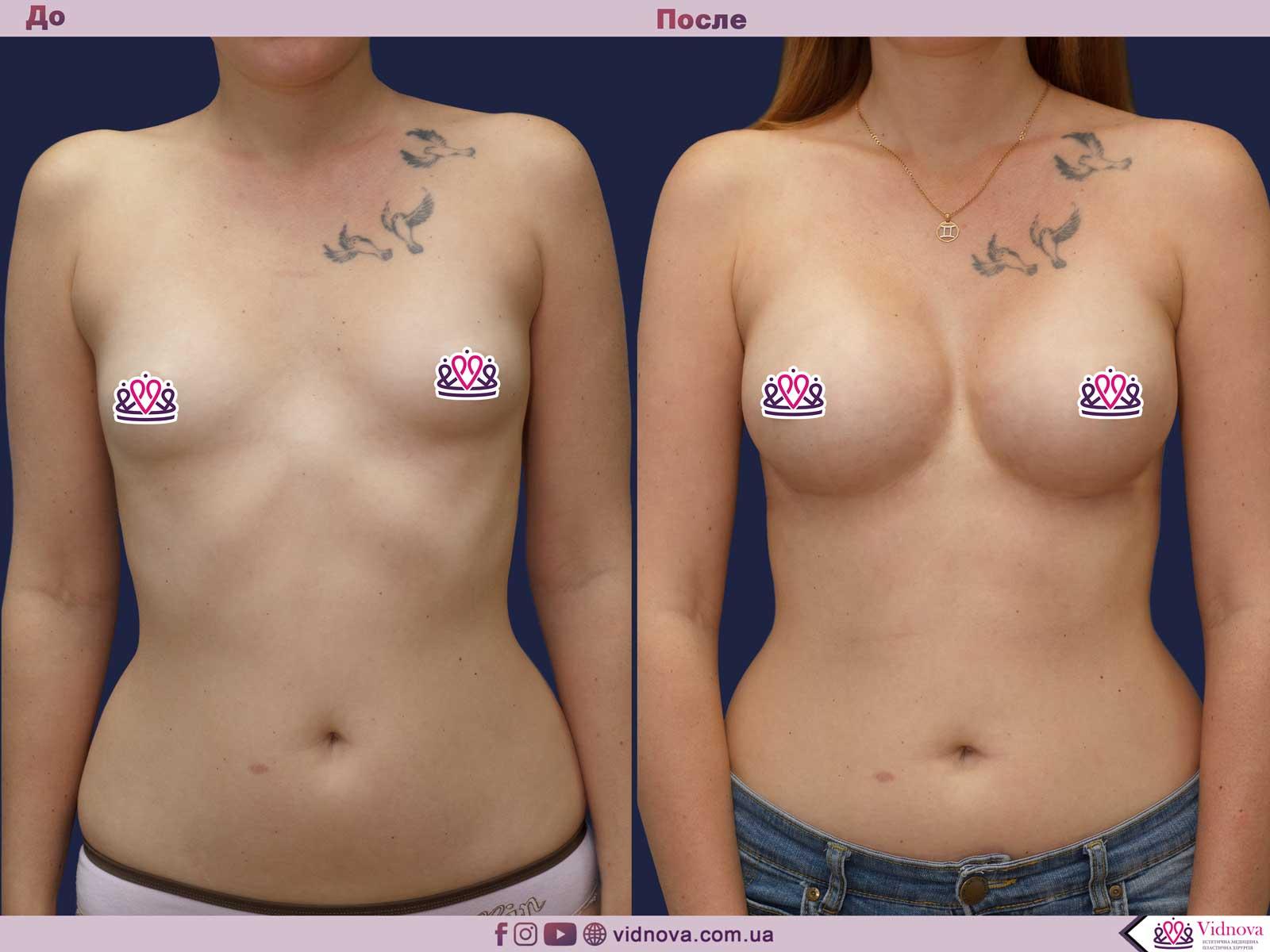 Пластика груди: результаты до и после - Пример №41-0 - Светлана Работенко