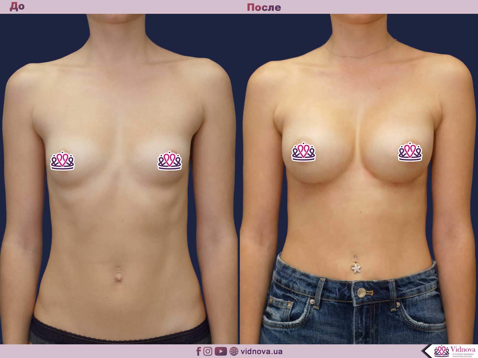 Пластика груди: результаты до и после - Пример №40-0 - Светлана Работенко