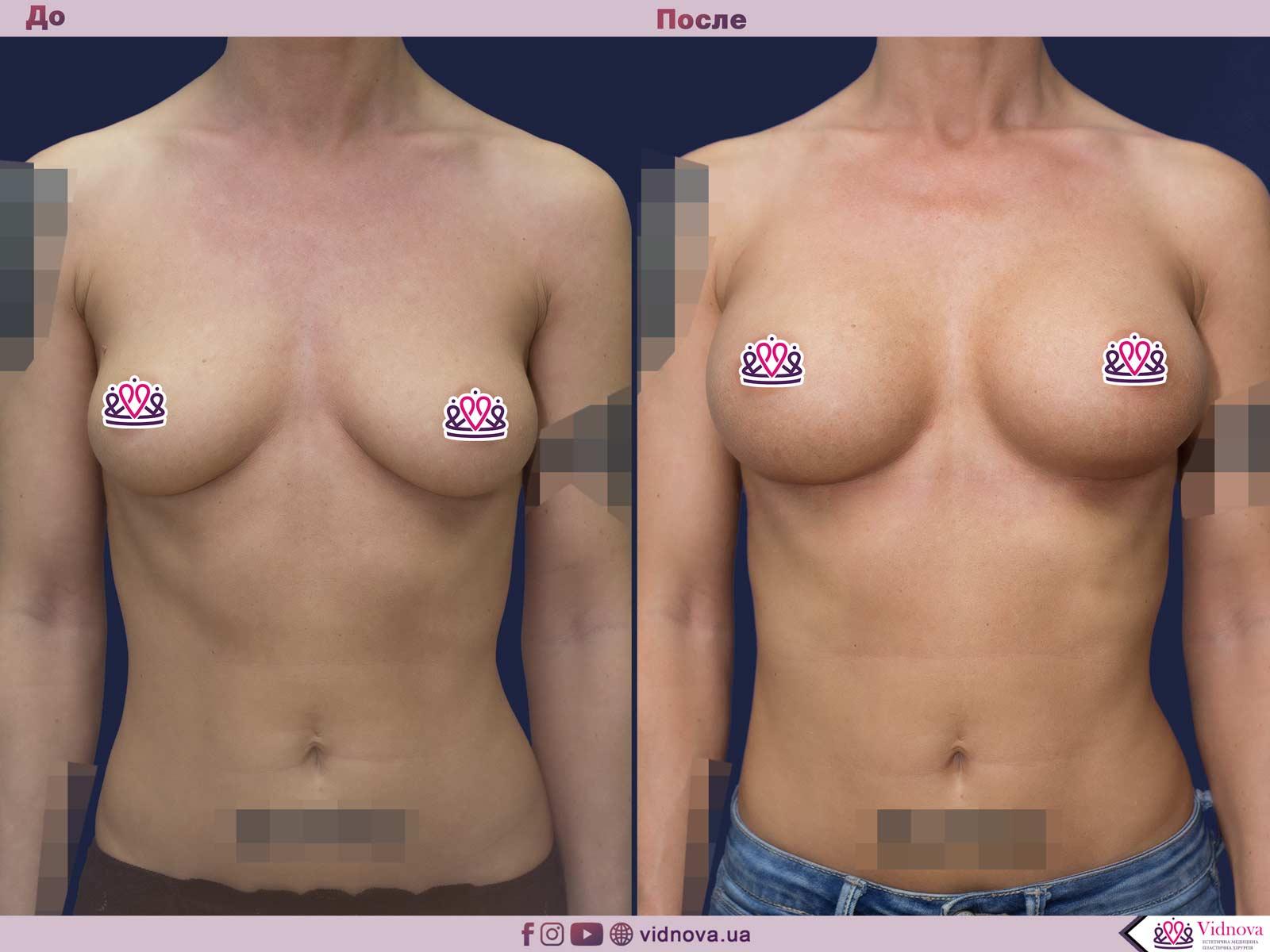 Пластика груди: результаты до и после - Пример №45-0 - Светлана Работенко