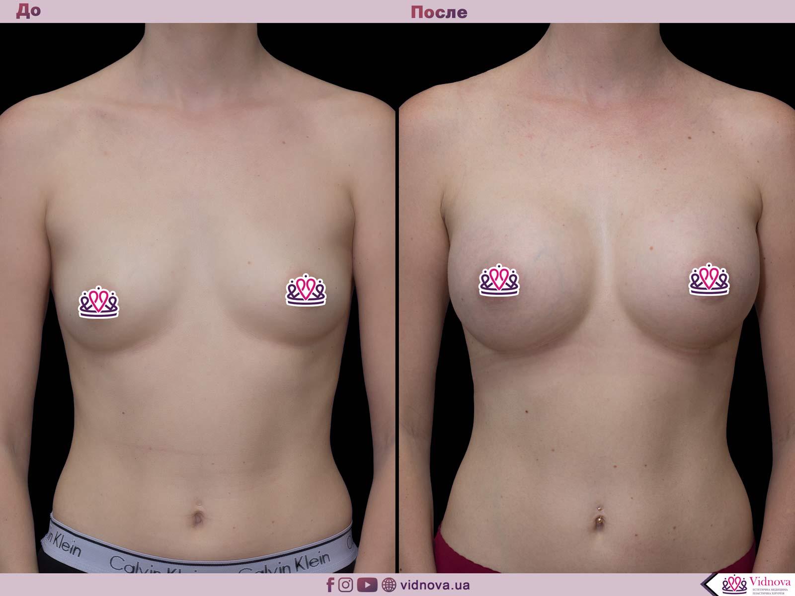 Пластика груди: результаты до и после - Пример №50-0 - Светлана Работенко