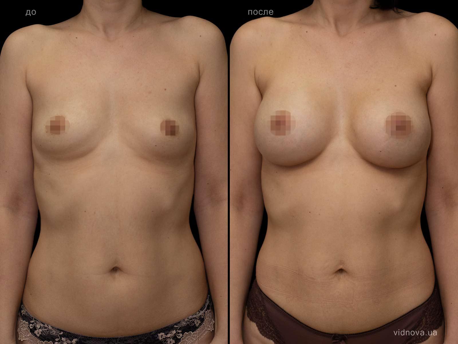 Пластика груди: результаты до и после - Пример №101-0 - Светлана Работенко