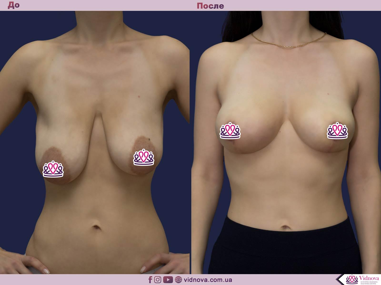 Пластика груди: результаты до и после - Пример №15-0 - Светлана Работенко