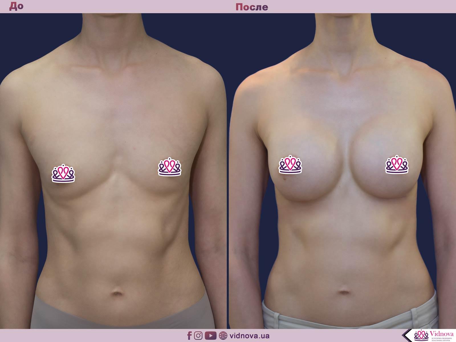 Пластика груди: результаты до и после - Пример №44-0 - Светлана Работенко