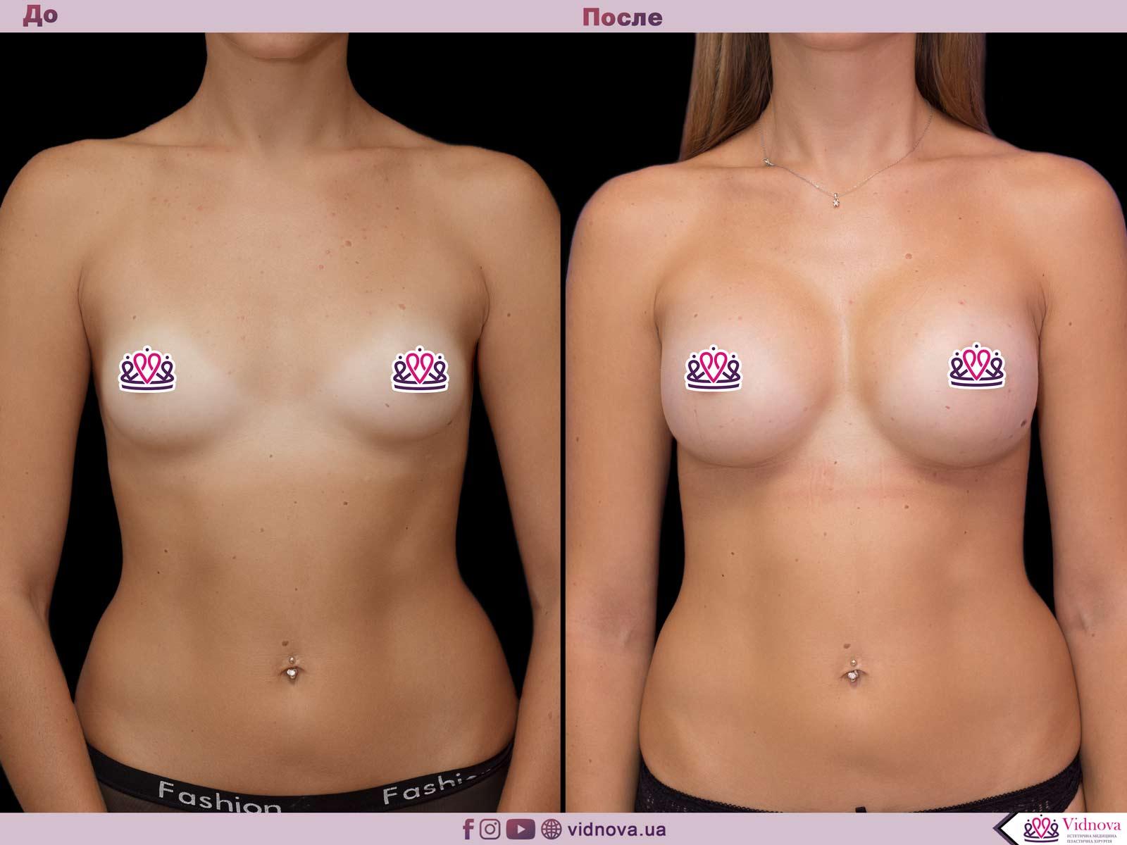 Пластика груди: результаты до и после - Пример №53-0 - Светлана Работенко