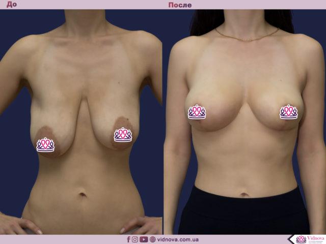 Подтяжка груди 1 7 640x480 1