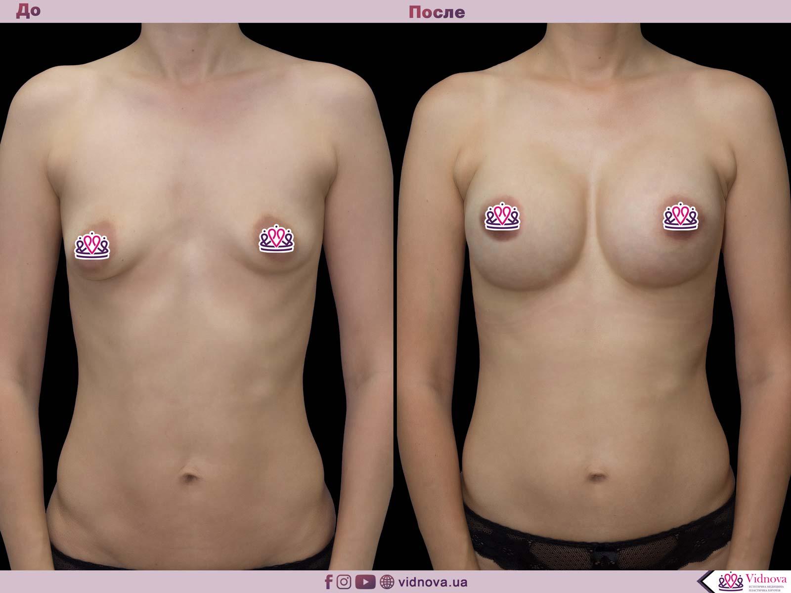 Коррекция асимметрии груди 1 7
