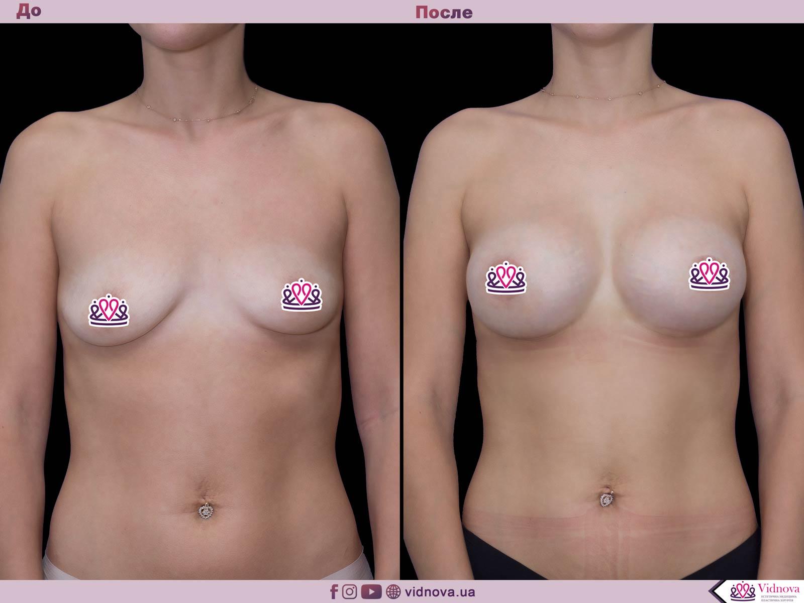Пластика груди: результаты до и после - Пример №52-0 - Светлана Работенко
