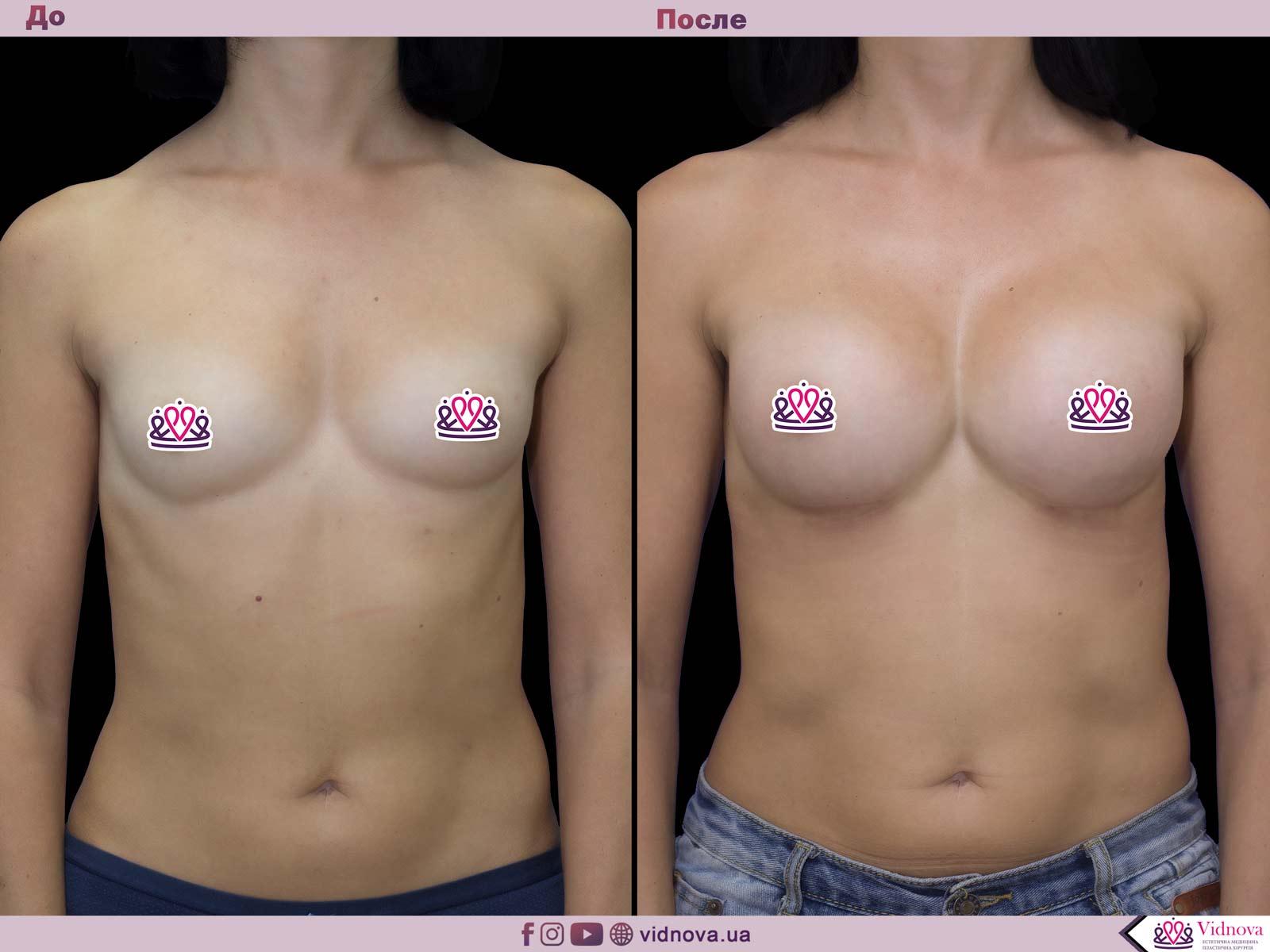 Пластика груди: результаты до и после - Пример №51-0 - Светлана Работенко