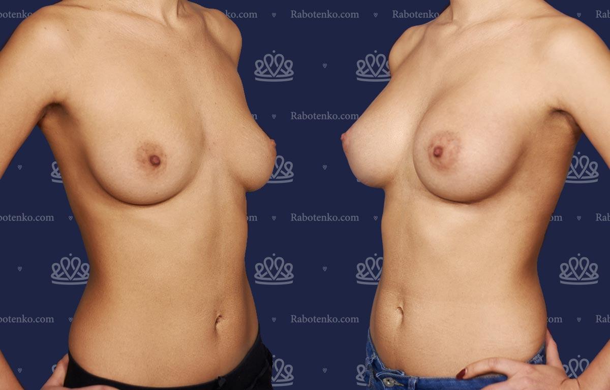 Пластика груди: результаты до и после - Пример №0-0 - Светлана Работенко