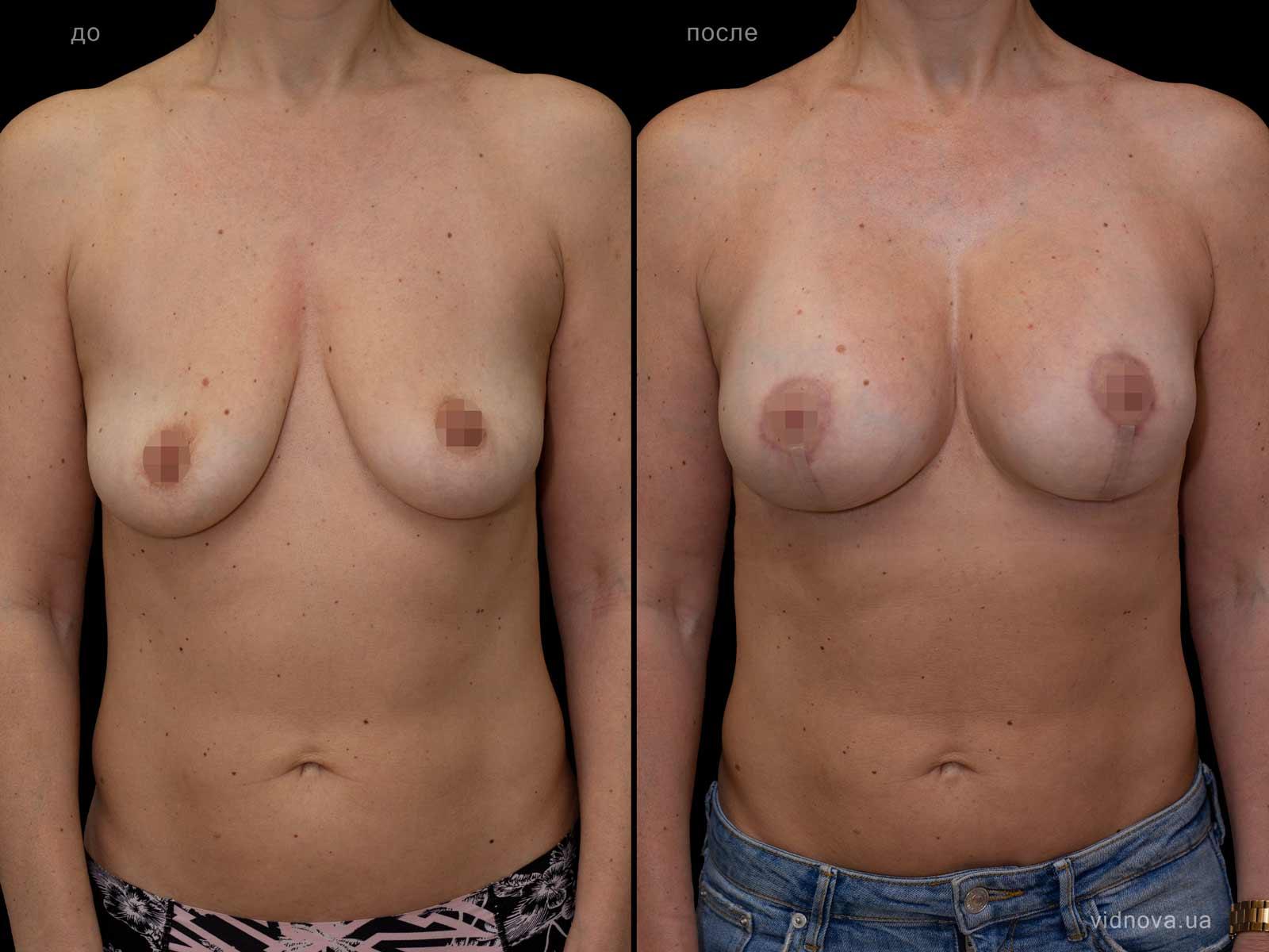 Пластика груди: результаты до и после - Пример №87-0 - Светлана Работенко