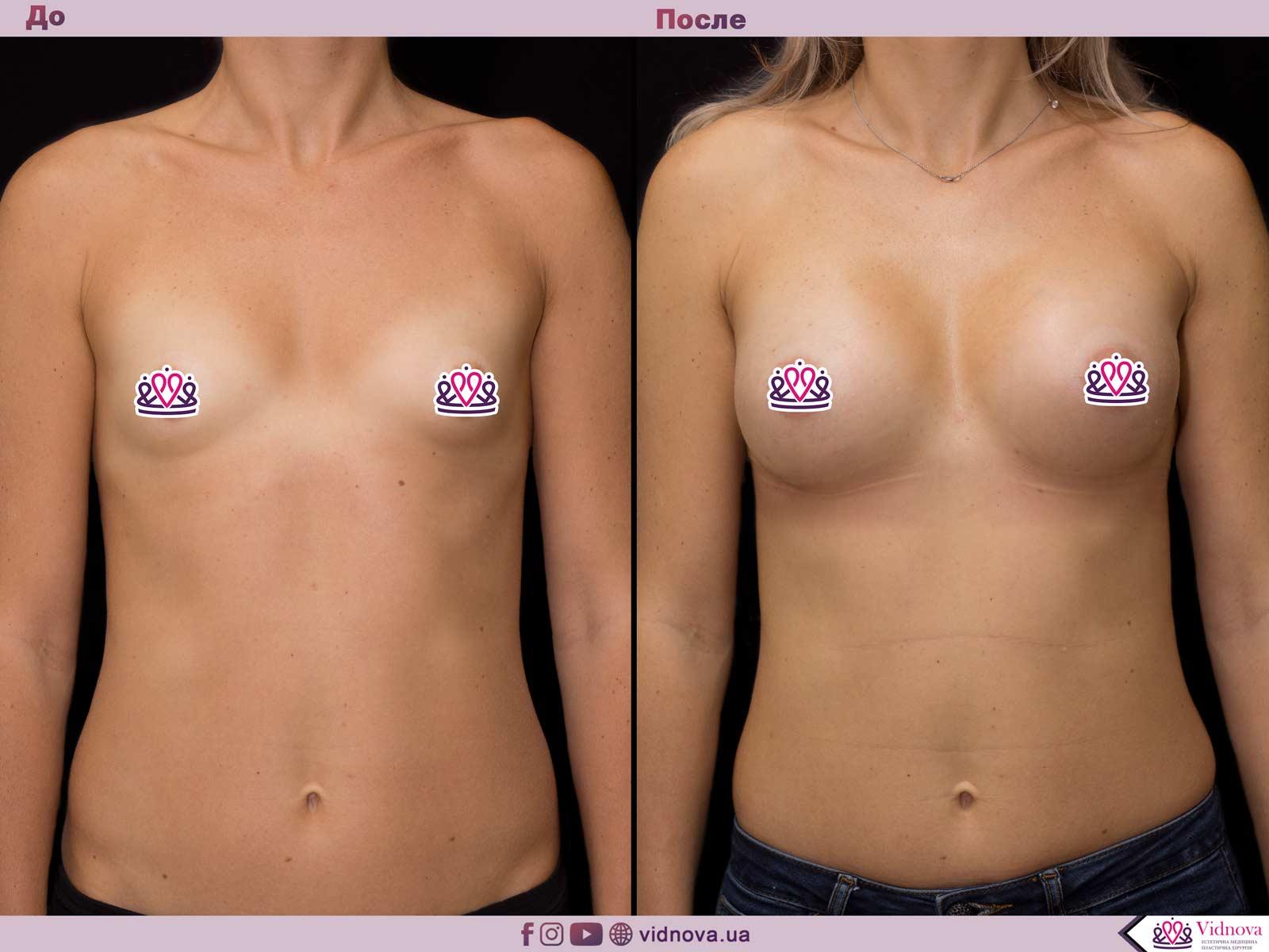 Пластика груди: результаты до и после - Пример №57-0 - Светлана Работенко