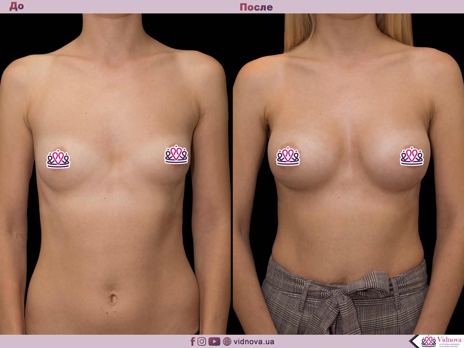 Пластика груди: результаты до и после - Пример №56-0 - Светлана Работенко