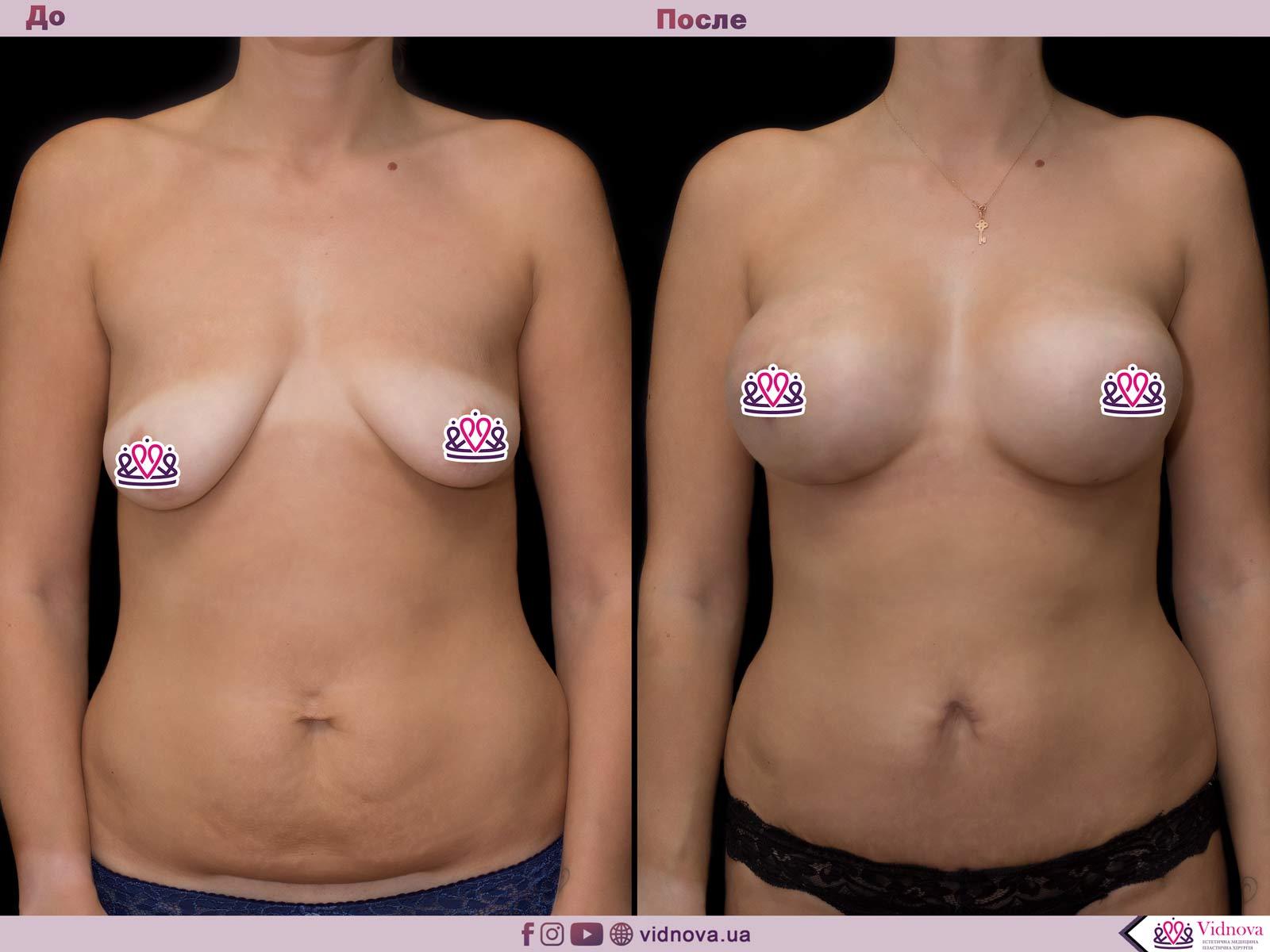 Пластика груди: результаты до и после - Пример №61-0 - Светлана Работенко