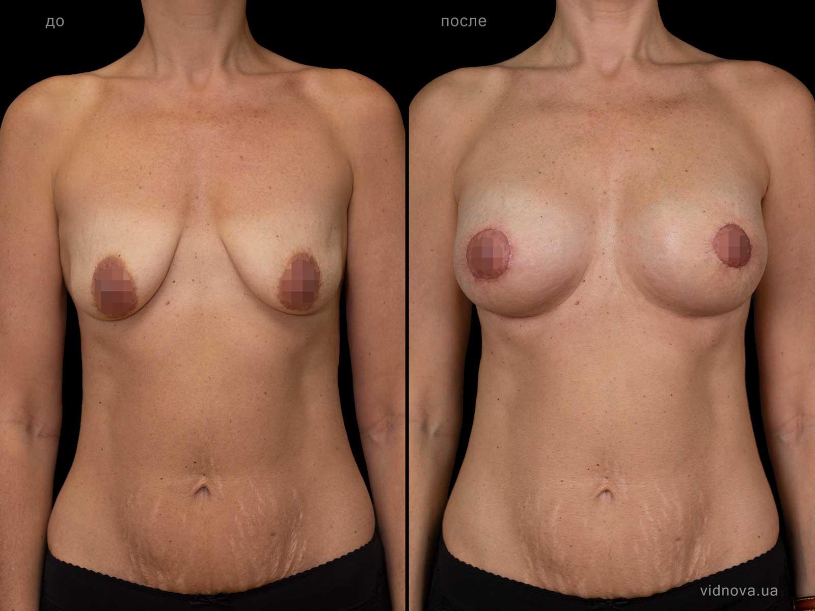 Пластика груди: результаты до и после - Пример №103-0 - Светлана Работенко