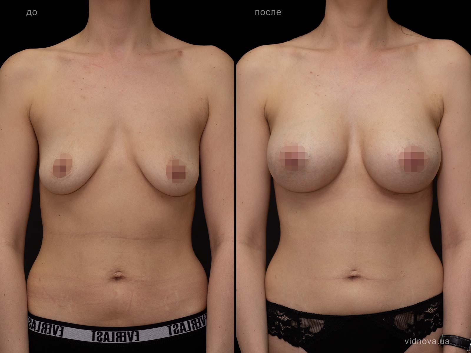 Пластика груди: результаты до и после - Пример №93-0 - Светлана Работенко