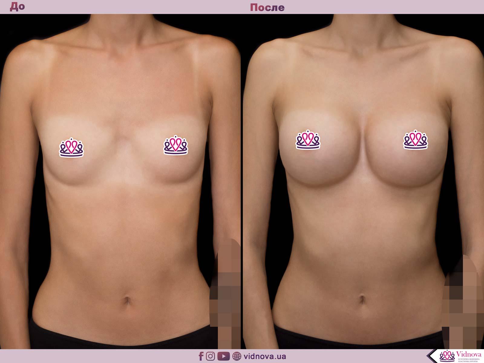 Пластика груди: результаты до и после - Пример №60-0 - Светлана Работенко