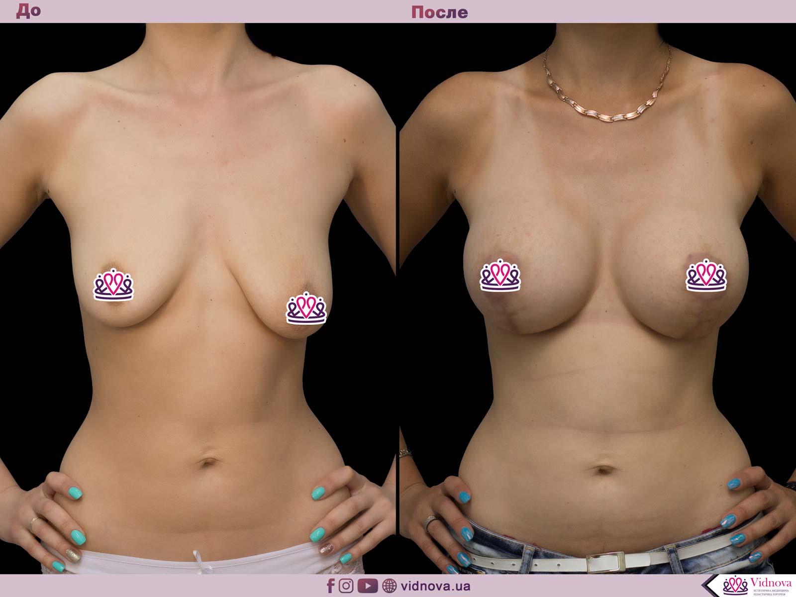 Пластика груди: результаты до и после - Пример №58-0 - Светлана Работенко