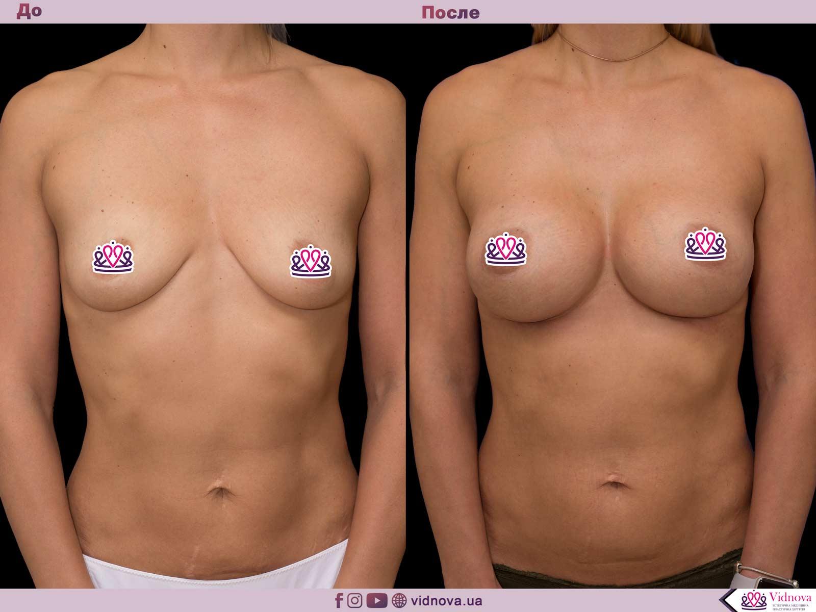 Пластика груди: результаты до и после - Пример №64-0 - Светлана Работенко