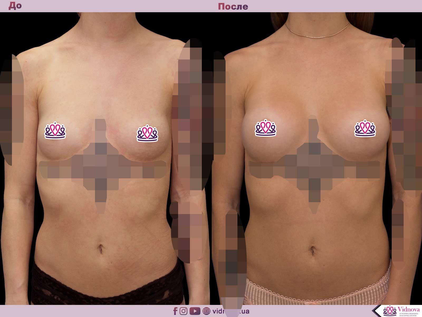 Пластика груди: результаты до и после - Пример №63-0 - Светлана Работенко