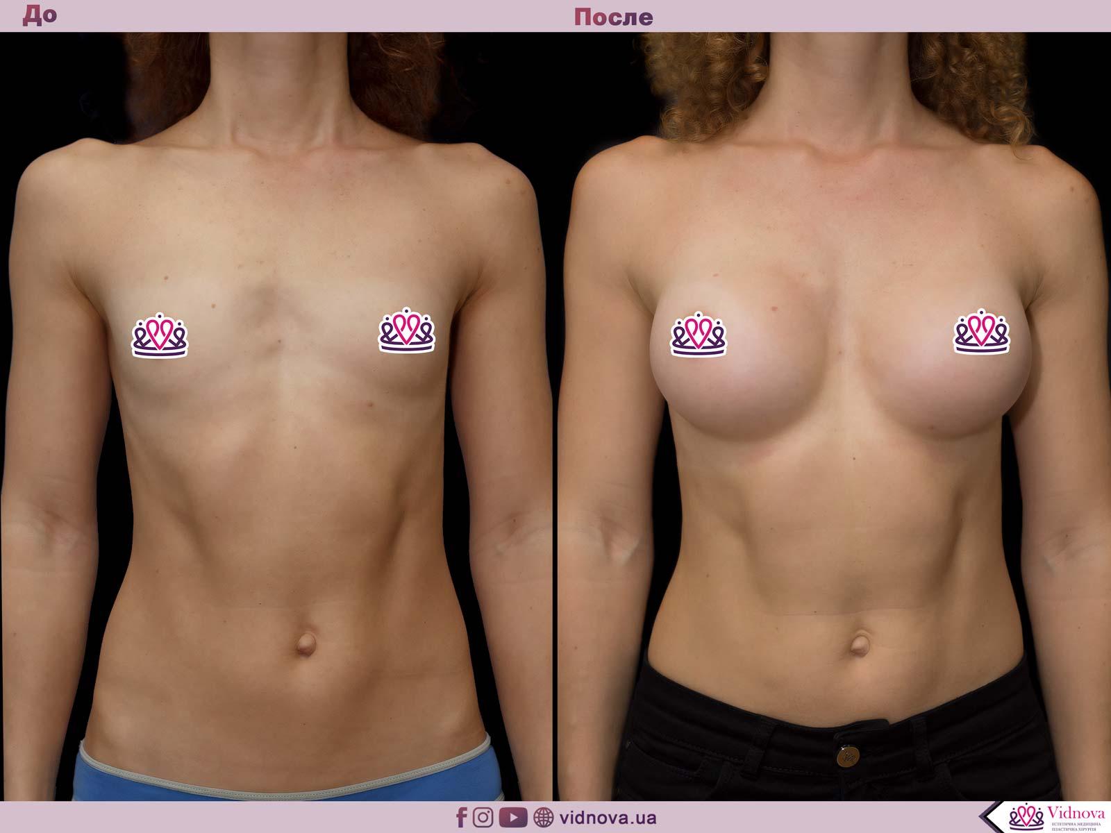 Пластика груди: результаты до и после - Пример №65-0 - Светлана Работенко