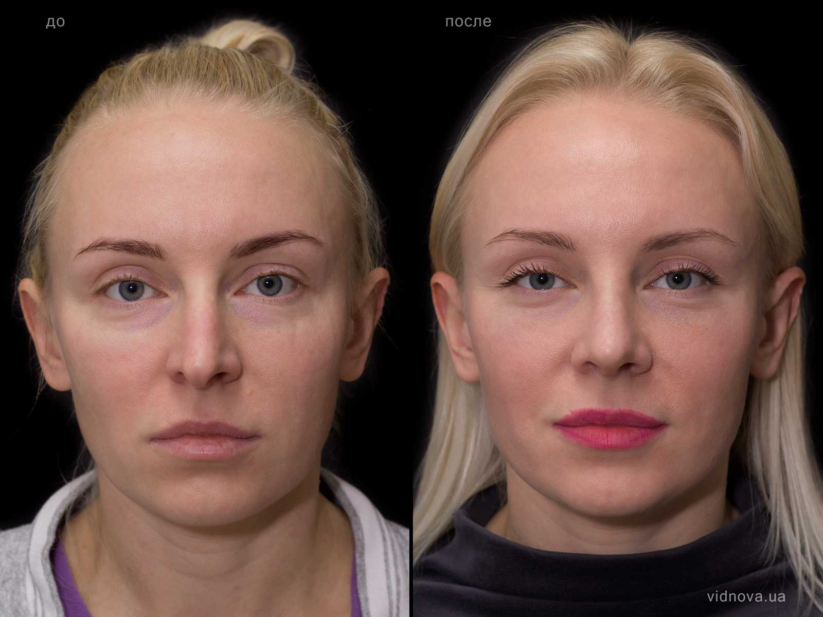 Пластика лица: результаты до и после