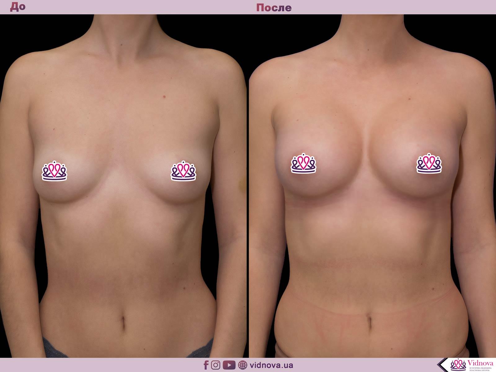 Пластика груди: результаты до и после - Пример №62-0 - Светлана Работенко