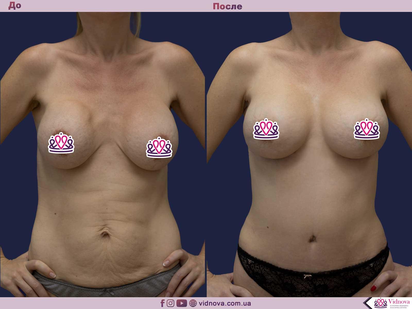 Замена грудных имплантов 1