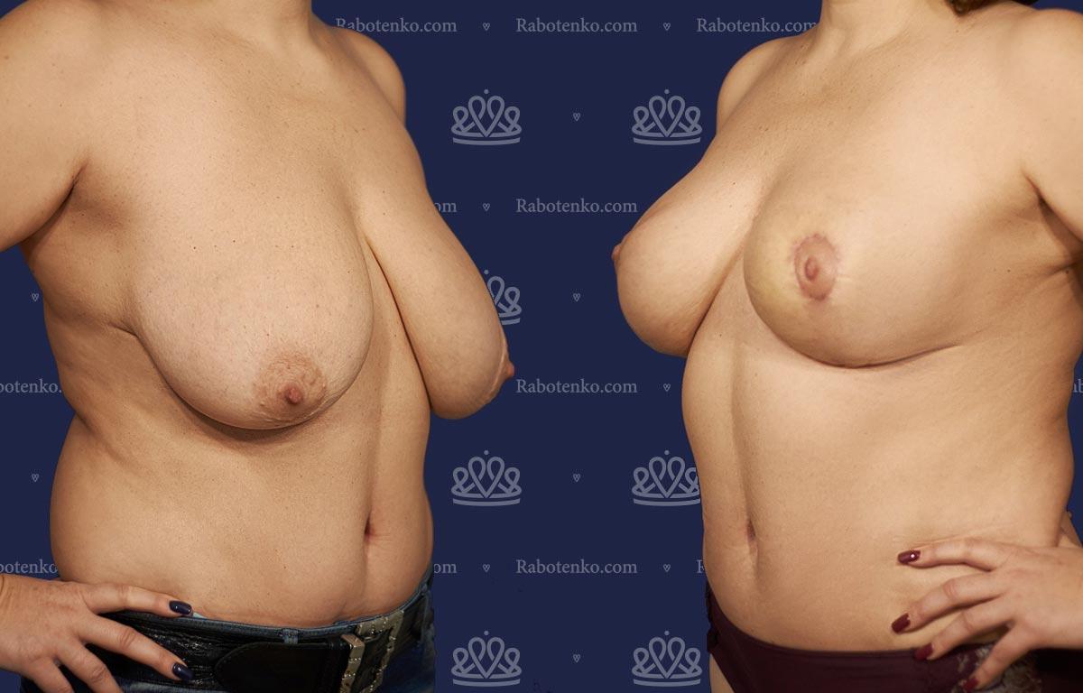Пластика груди: результаты до и после - Пример №10-0 - Светлана Работенко