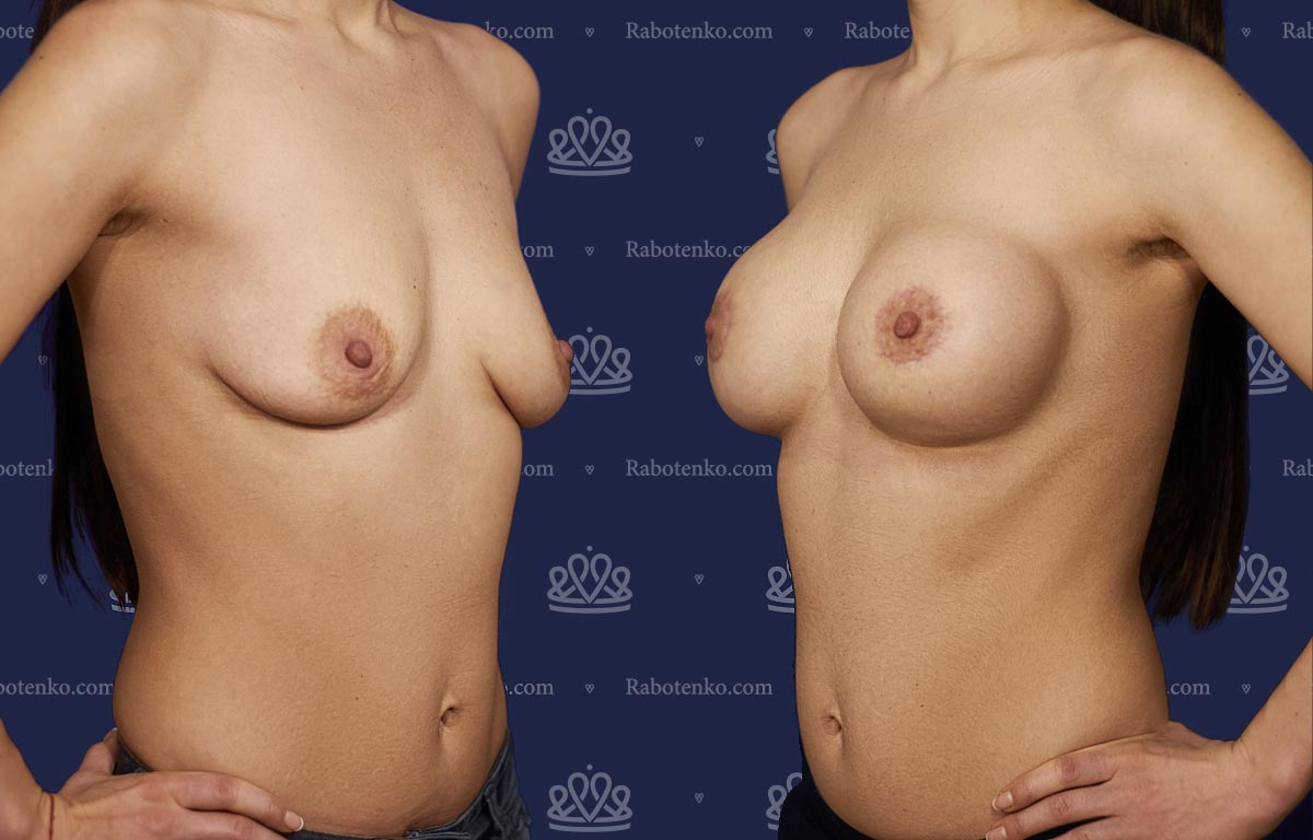 Пластика груди: результаты до и после - Пример №11-0 - Светлана Работенко