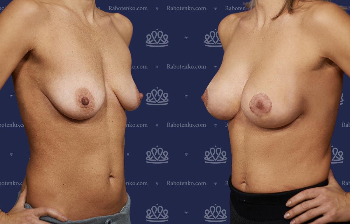 Пластика груди: результаты до и после - Пример №12-0 - Светлана Работенко
