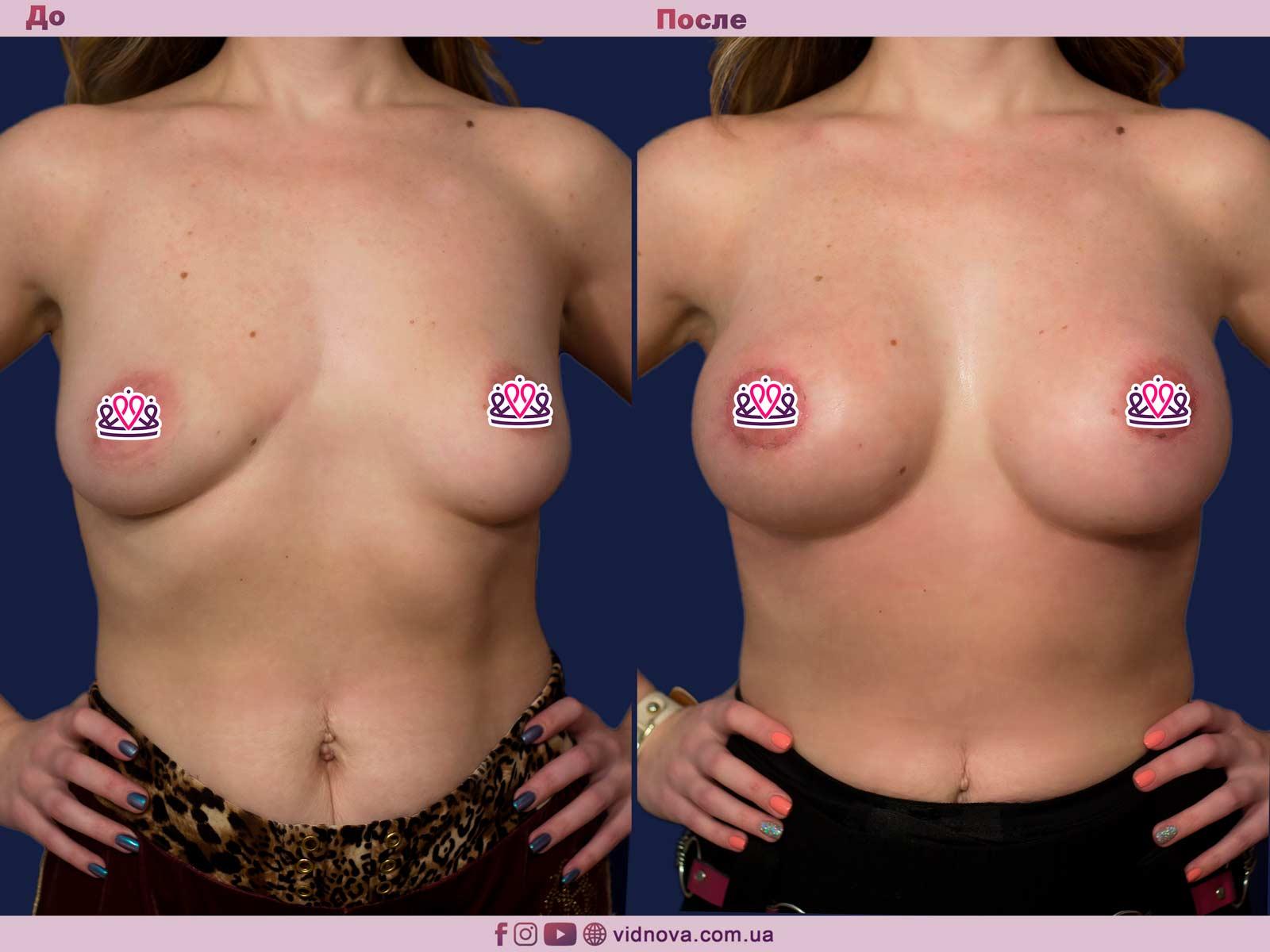 Пластика груди: результаты до и после - Пример №19-0 - Светлана Работенко