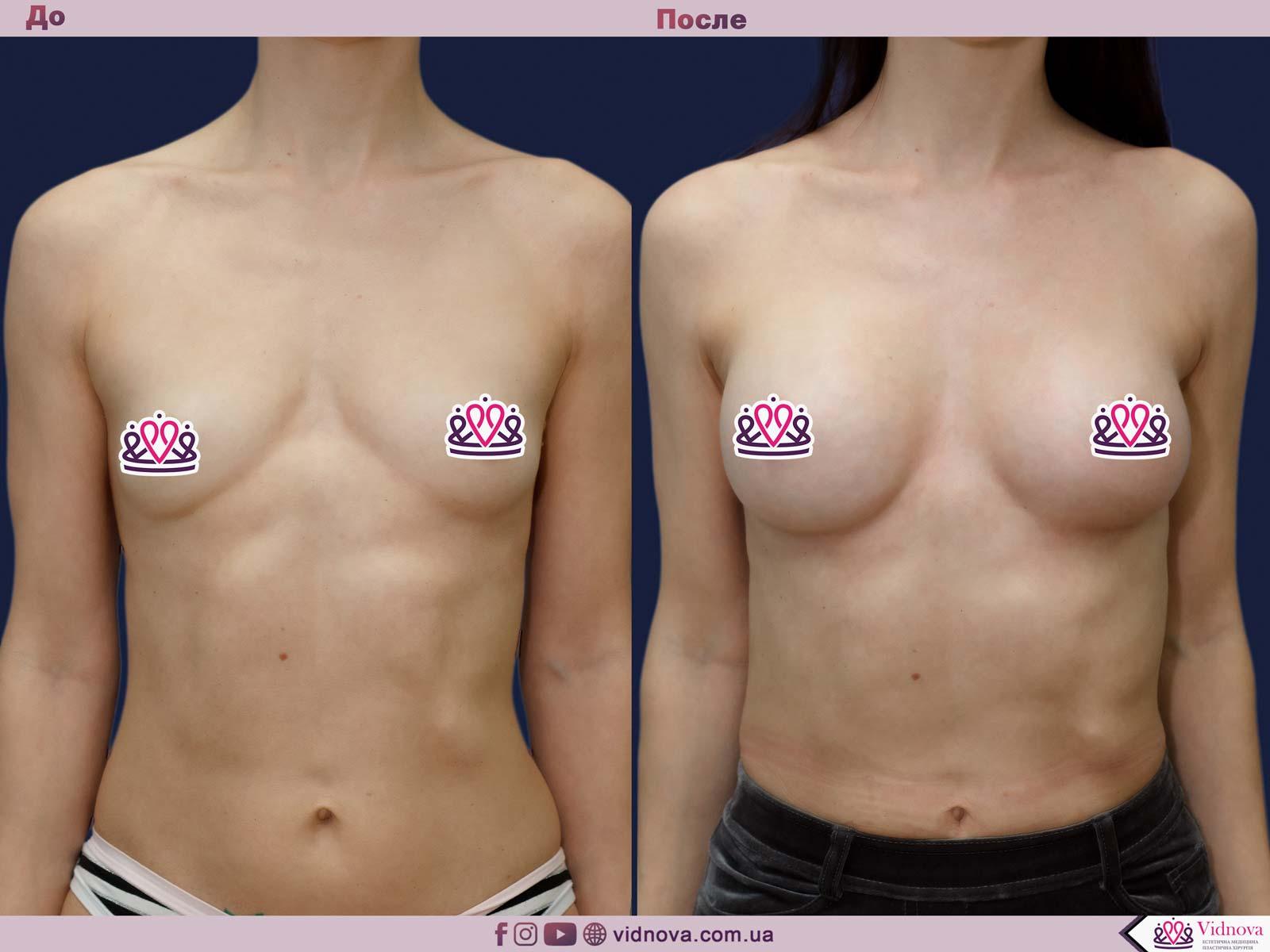Пластика груди: результаты до и после - Пример №23-0 - Светлана Работенко