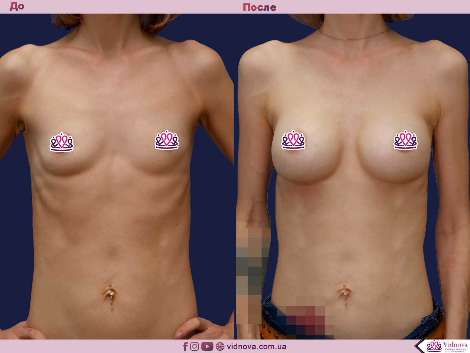 Пластика груди: результаты до и после - Пример №37-0 - Светлана Работенко