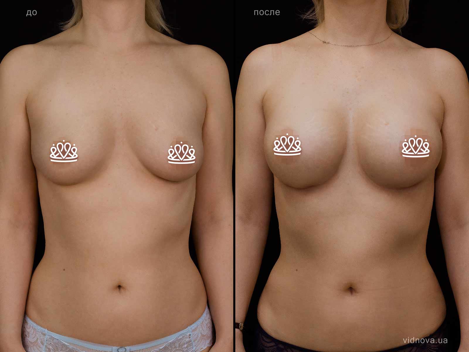 Пластика груди: результаты до и после - Пример №121-0 - Светлана Работенко
