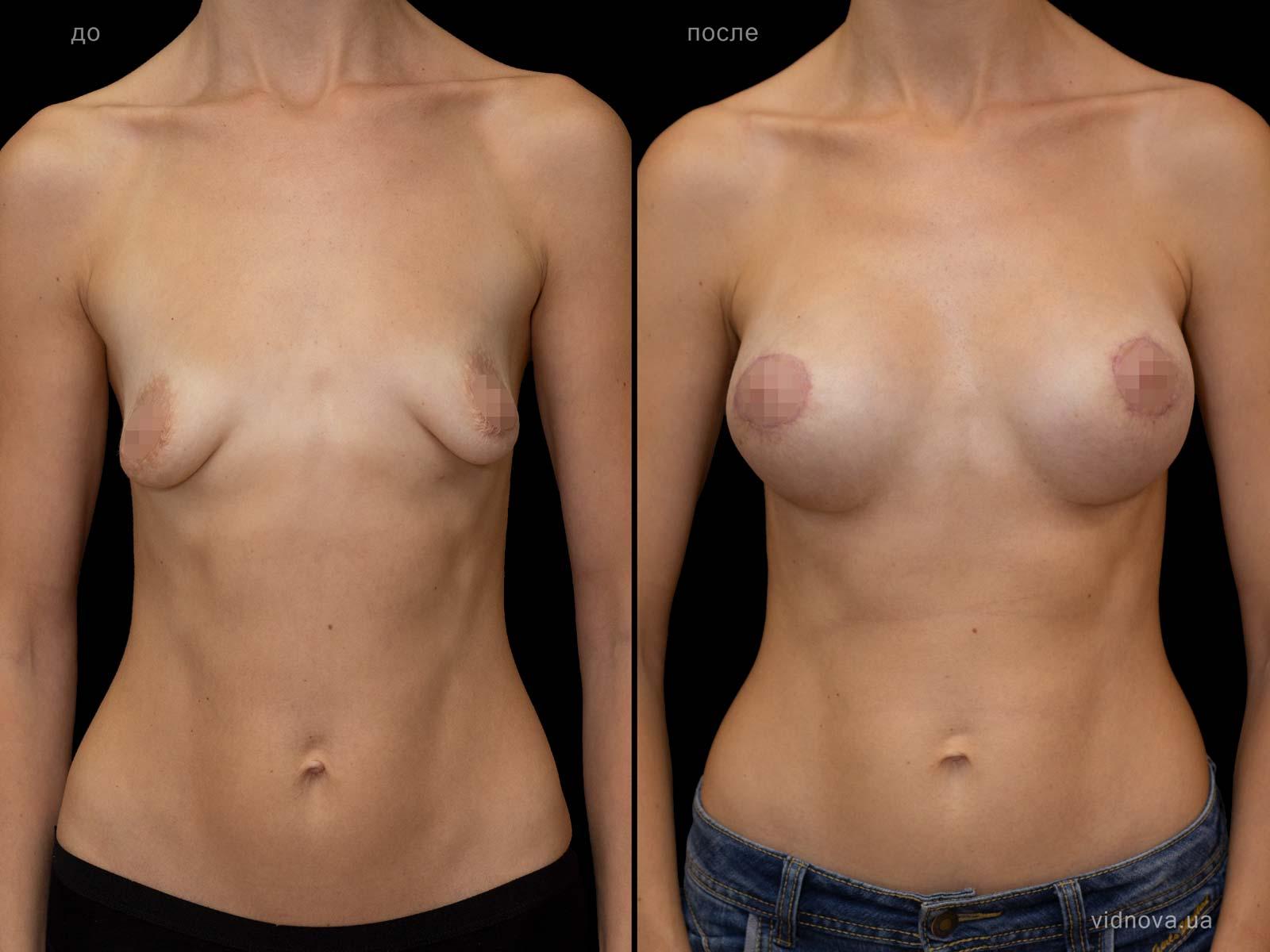 Пластика груди: результаты до и после - Пример №98-0 - Светлана Работенко