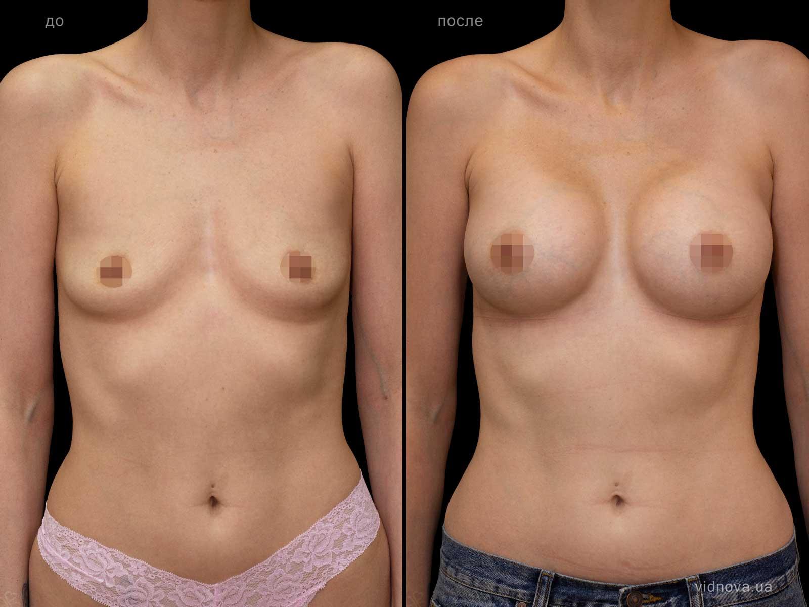 Пластика груди: результаты до и после - Пример №96-0 - Светлана Работенко