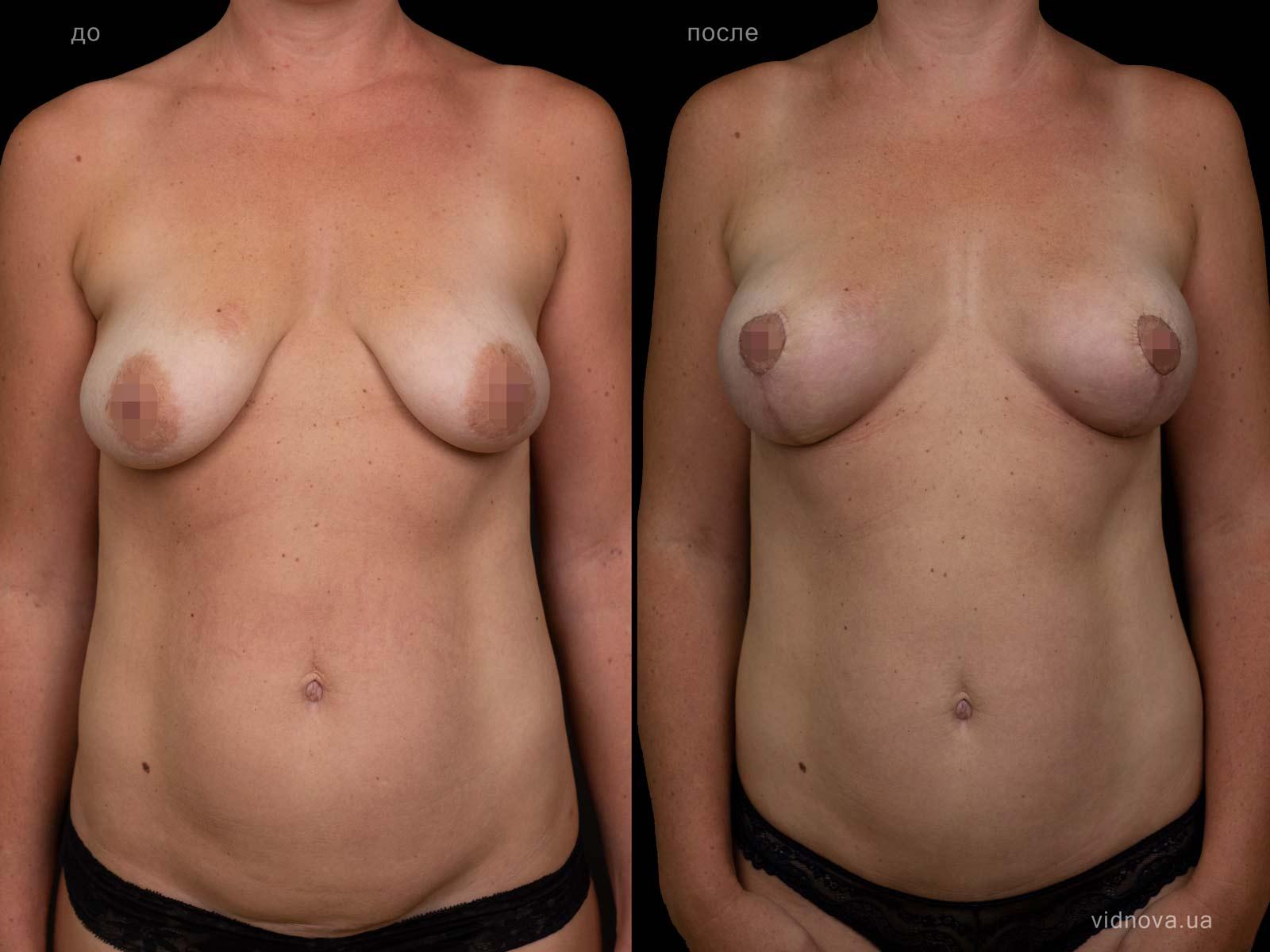 Пластика груди: результаты до и после - Пример №94-0 - Светлана Работенко