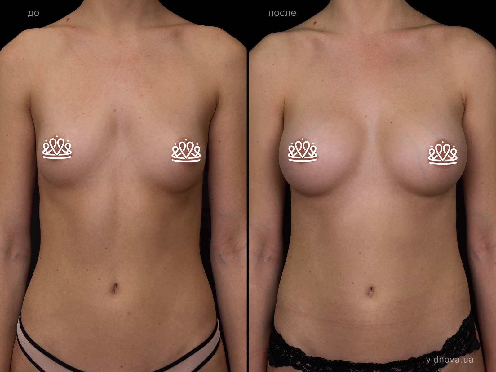 Пластика груди: результаты до и после - Пример №110-0 - Светлана Работенко