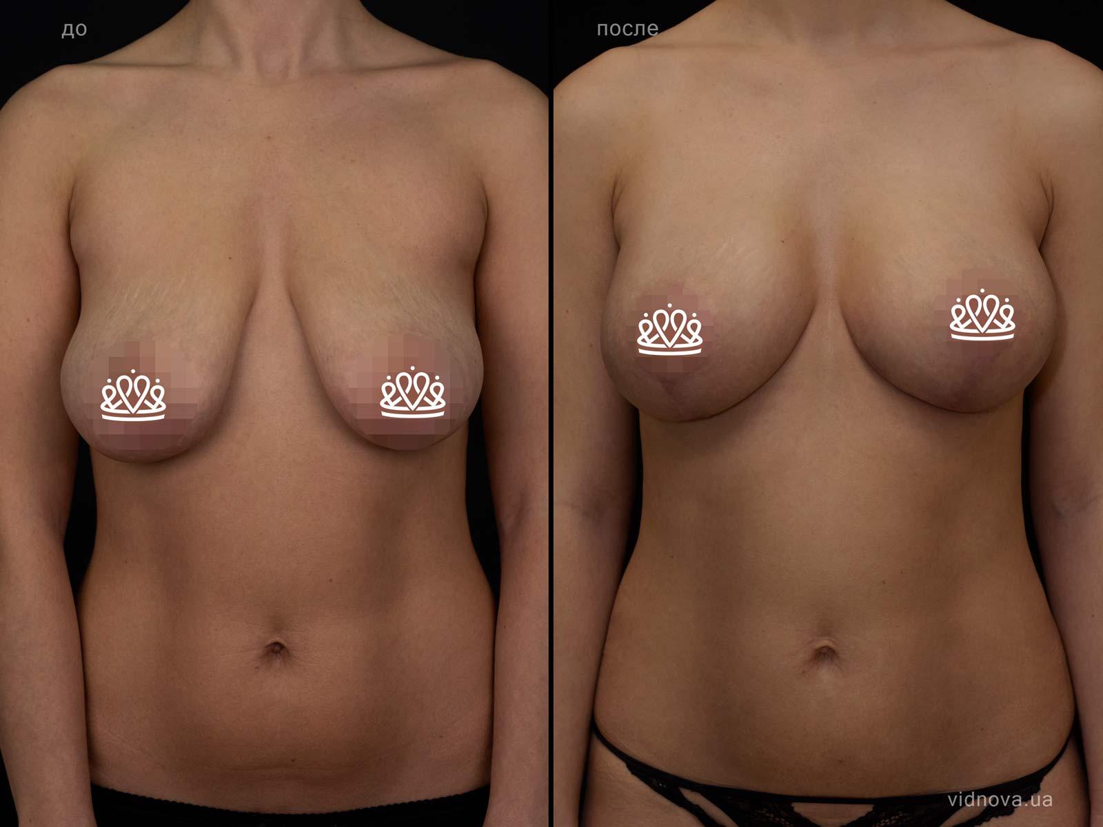 Пластика груди: результаты до и после - Пример №116-0 - Светлана Работенко