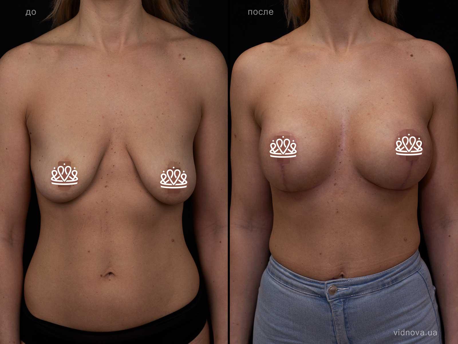 Пластика груди: результаты до и после - Пример №113-0 - Светлана Работенко