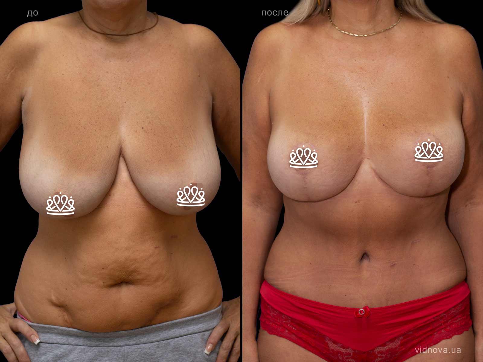 Пластика груди: результаты до и после - Пример №114-0 - Светлана Работенко