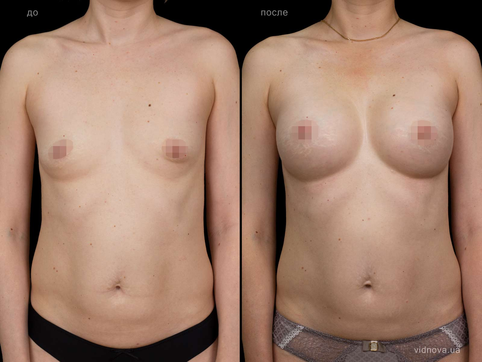 Пластика груди: результаты до и после - Пример №85-0 - Светлана Работенко