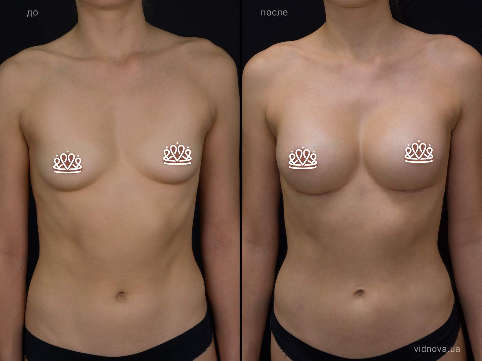 Пластика груди: результаты до и после - Пример №115-0 - Светлана Работенко