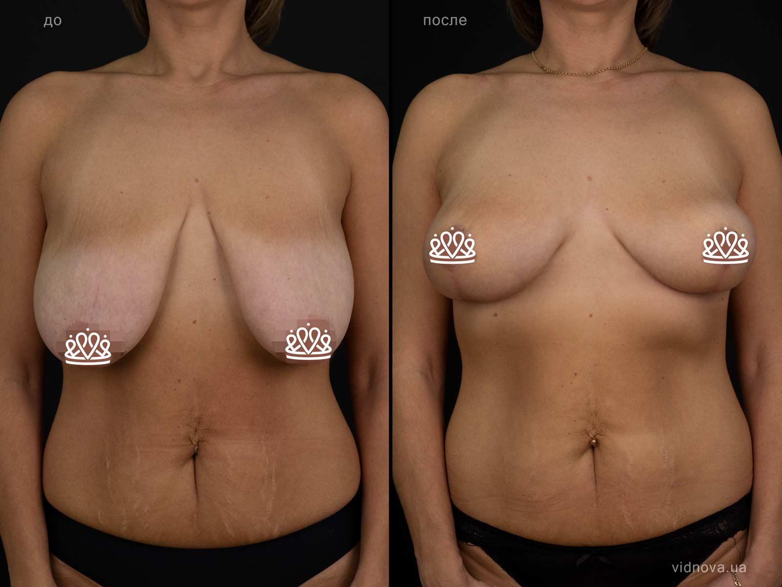 Пластика груди: результаты до и после - Пример №117-0 - Светлана Работенко